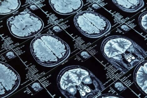 Epäsosiaalinen käytös on yhdistetty aivojen rakenteen muuttumiseen