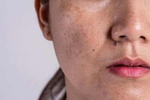 Mistä ihon hyperpigmentaatio johtuu?