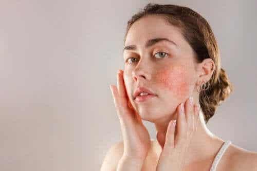 Mistä ihon reaktiivisuus johtuu ja miten sitä hoidetaan?