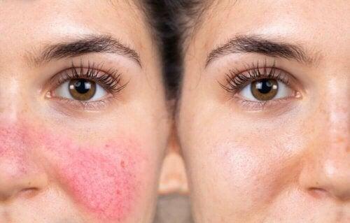 Reaktiivinen iho ilmenee usein ihon punoituksena, kuivumisena, kutinana, kiiltona tai ärsytyksenä