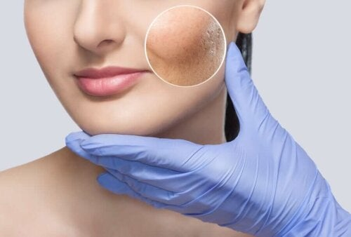 Monet ympäristön normaalit ärsykkeet voivat altistaa reaktiiviselle iholle