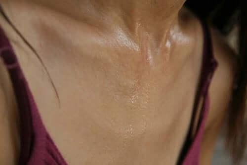 Epätavalliset sydänkohtauksen oireet naisilla: hikoilu.