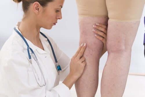 8 oiretta, joita naisen ei kannata sivuuttaa: ongelmat jaloissa.