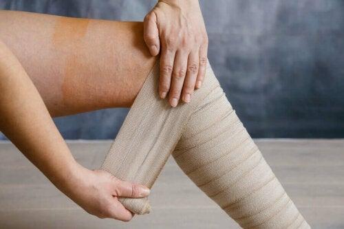 Väsyneiden jalkojen oireyhtymä on ikävä, mutta yleensä hoidettavissa oleva vaiva