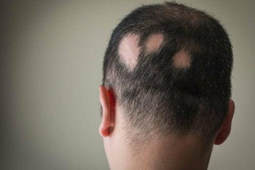 Alopecia areata eli pälvikalju on hyvin vähän tunnettu patologia