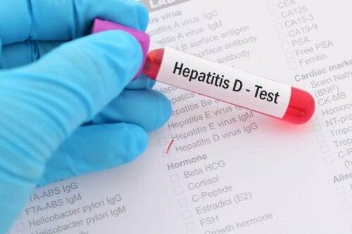 Hepatiitti D:n viruspartikkelia pidetään delta-aineena ja tästä syystä sen nimeen viitataan myös kirjaimella D