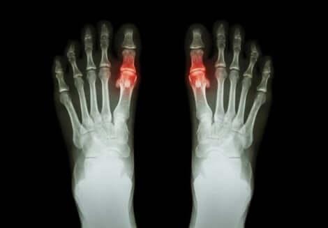 Kihti vaikuttaa yleensä erityisesti miesten jalkoihin