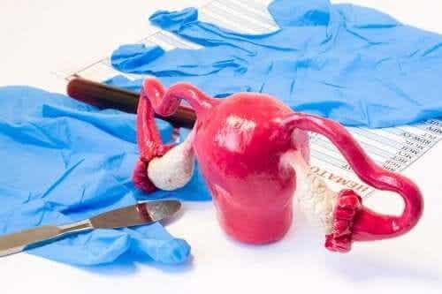 Mistä syistä kohdunpoisto eli hysterektomia suoritetaan?