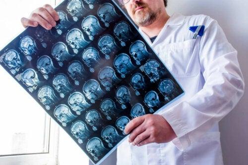 Epilepsian eri tyypit voidaan jaotella sen mukaan, missä aivojen osassa neuronien toiminta on häiriintynyt