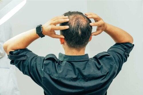 Alopecian eri tyypit ovat niin monimuotoisia, että on mahdotonta puhua yleisistä ilmenemismuodoista ja oireista