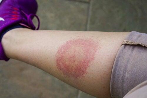 Punkin pureman jälkeen ihoalueelle ilmestyy pieni kohouma, joka häviää hiljalleen seuraavien päivien aikana