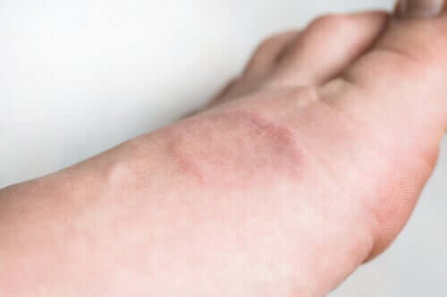 Rengasgranulooma: oireet ja hoito