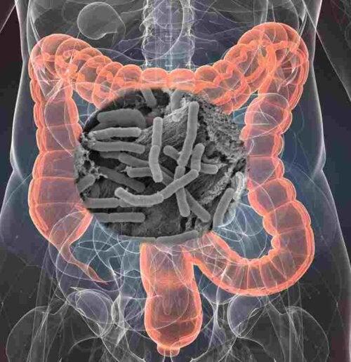 Probiootit ja prebiootit voivat osoittautua tehokkaiksi lisäravinteiksi monien kroonisten sairauksien hoidossa