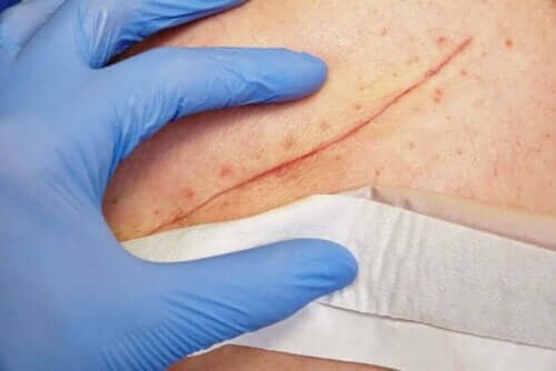 Klooriheksidiini sopii haavojen puhdistamiseen
