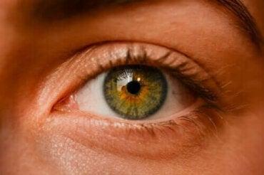Ovatko silmän sisäiset luomet vaarallisia?
