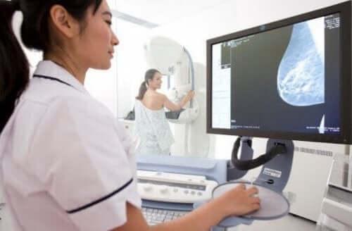 Rintasyövän seulontakokeet: mammografia.