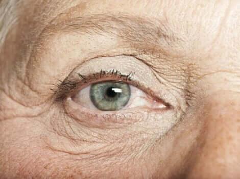 Silmän sisäiset luomet ovat yleensä hyvänlaatuisia
