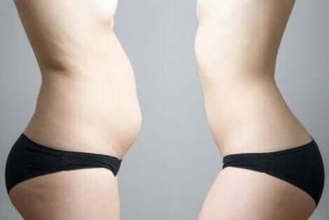Kryolipolyysi on tarkoitettu rasvan paikalliseen poistamiseen kehosta