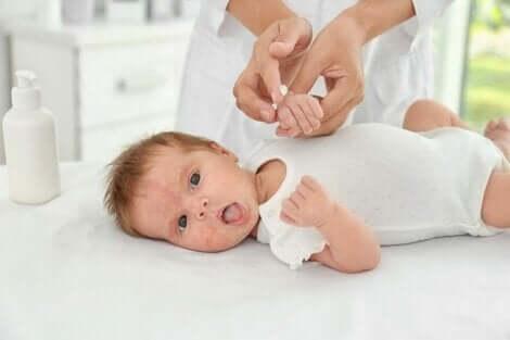 Vastasyntyneen vauvan ihoa on tärkeää osata hoitaa oikein