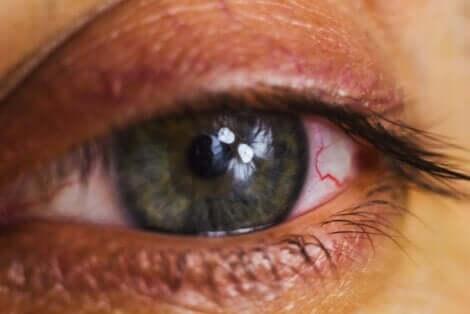 Vuotavat silmät voivat aiheuttaa paljon epämukavuutta