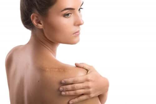 Yksi sitronellaöljyn tunnettu etu on ihovaurioiden, eli mm. haavojen, arpien ja mustelmien parantaminen.