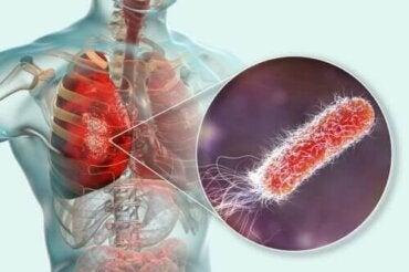 Onko keuhkoissa bakteereja?