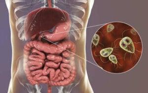 Giardiaasin oireet ja hoito