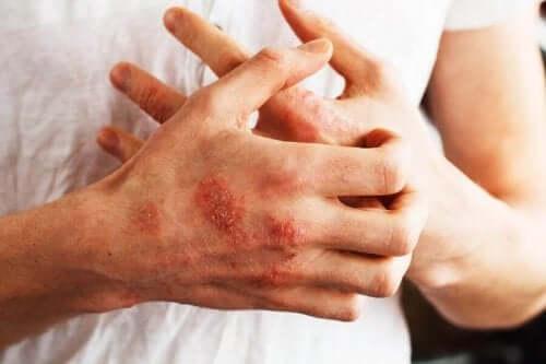 Sarsaparillan tunnetuimmat hyödyt liittyvät sen tehoon psoriasiksen hoidossa.