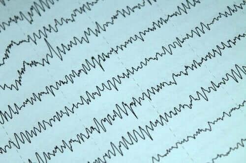 Imetys ja epilepsia: mitä tästä yhdistelmästä tulisi tietää?