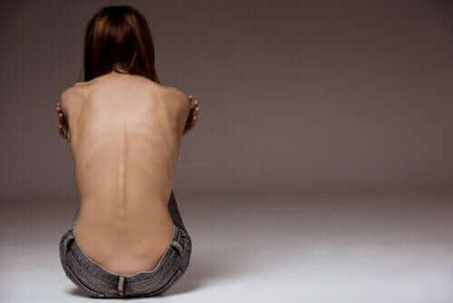 Sadoreksia: yhä yleistyvä syömishäiriö