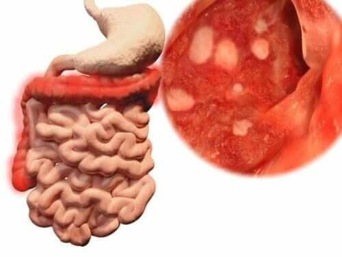 Maahan pudonnut ruoka voi aiheuttaa vaivoja, jos sen syö.