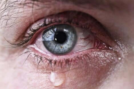 Vuotavat silmät ovat seurausta liiallisesta kyynelten muodostumisesta