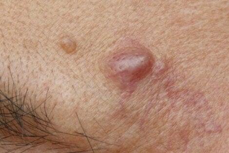Epidermaalikystat ovat ihonalaisia kohoumia