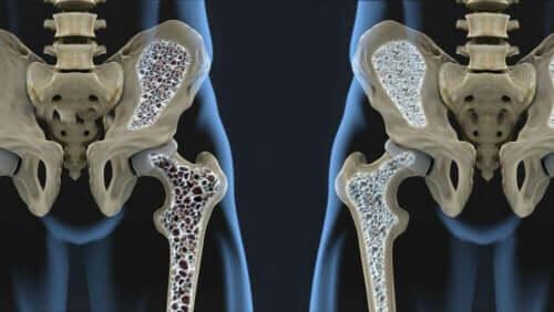 Osteoporoosin riskitekijät: luuston pieni koko.