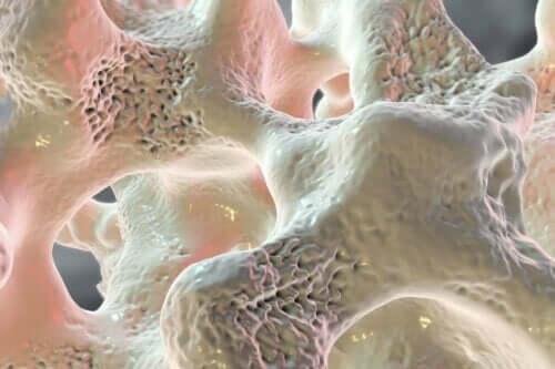 Kalsiumin puutteellinen saanti voi johtaa luiden haurastumiseen