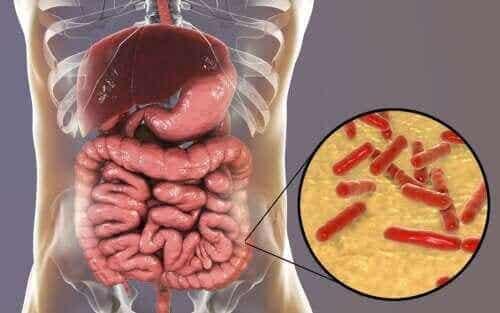 Suoliston mikrobiota: mistä tiedät sen vahingoittuneen?