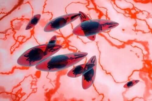 Silmän toksoplasmoosi johtuu loisesta nimeltä toxoplasma gondii