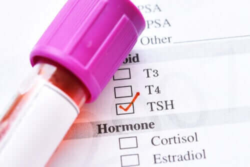 Alhainen tyreotropiini: syyt ja hoito
