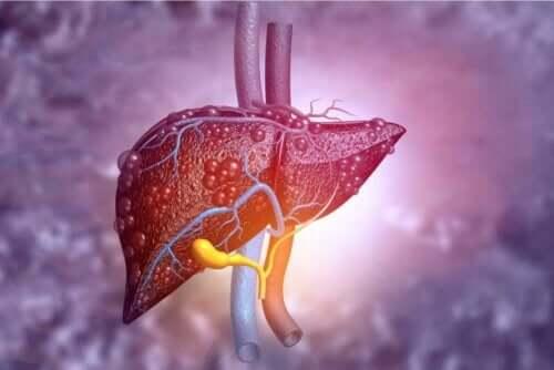 Ruoat, joita kirroosipotilaan tulisi syödä, riippuvat siitä missä vaiheessa tauti kullakin hetkellä on.