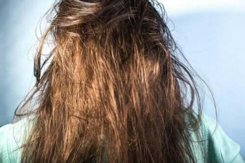 Rasvoittuvien hiusten pesu edellyttää oikeanlaisia tuotteita
