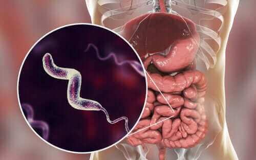Kampylobakteeri-infektiot ja niiden ominaispiirteet