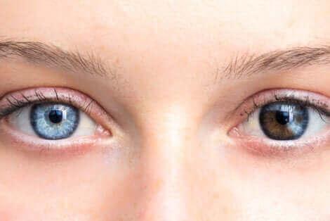 Silmien värin muuttuminen on harvinaista.