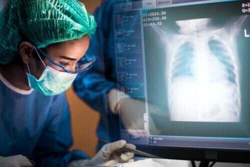 Keuhkonsiirto: mitä kaikkea siitä tulisi tietää?