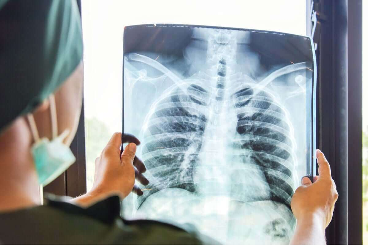 Keuhkonsiirto on suuri toimenpide.