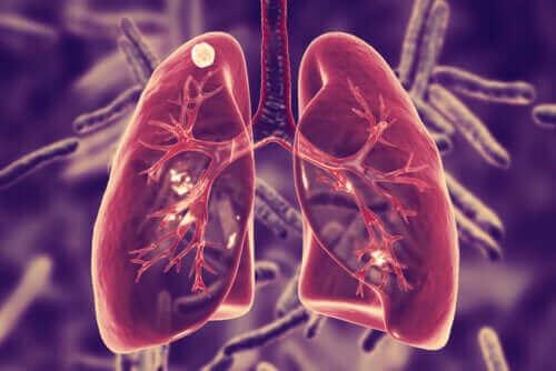 Mikä keuhkotuberkuloosi on ja mitkä sen oireet ovat?