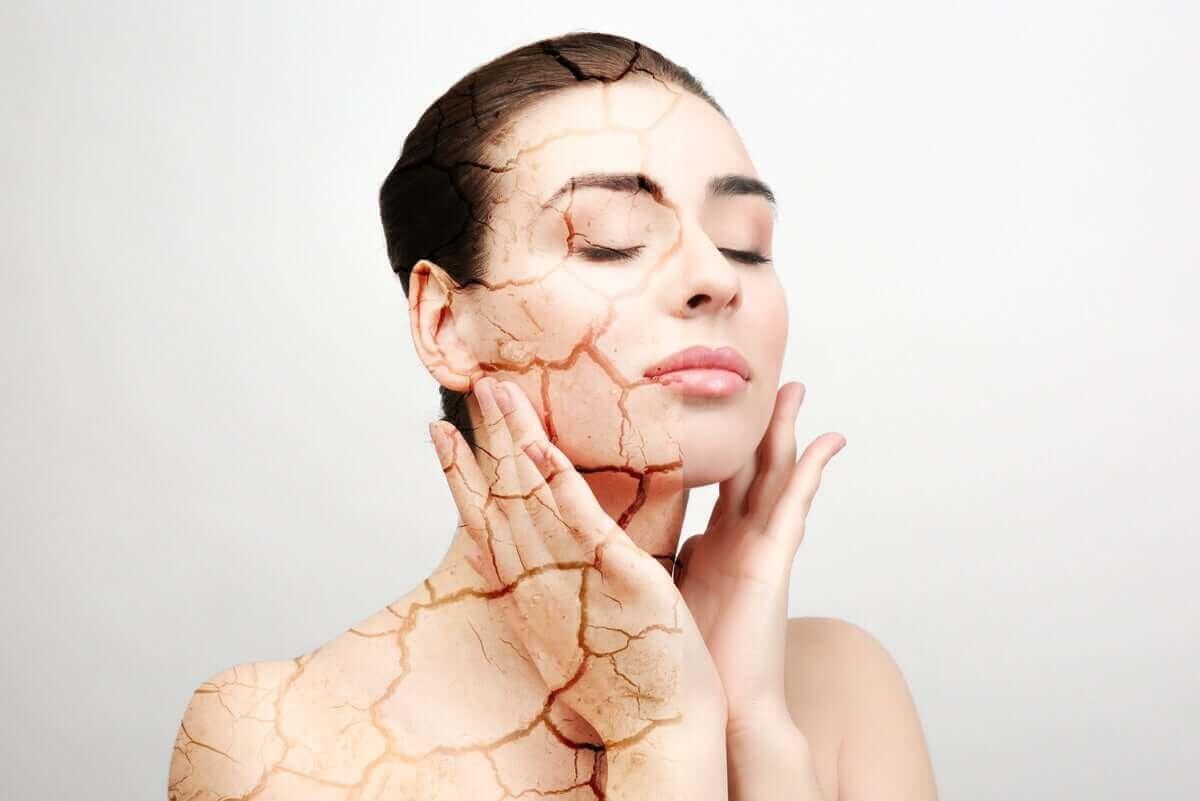 Mikä aiheuttaa ihon kuivumista?