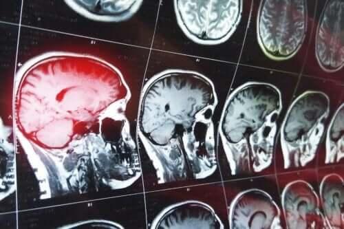 Konfabulaatiot johtuvan tietyn aivoalueen vaurioista
