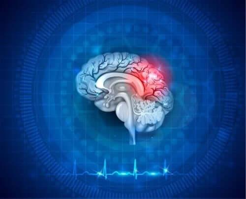 Ensiapu aivohalvaukseen ja sydämenpysähdykseen