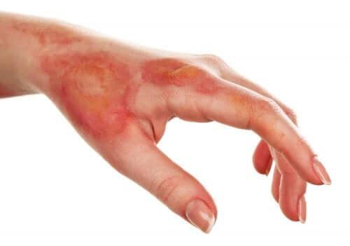 Ihokuolion diagnosointi ja aiheuttajat