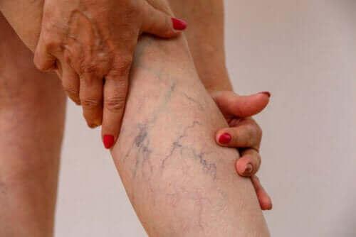 Laskimotulehdus: syyt, oireet ja hoito